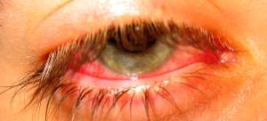 A bloodshot eye from infection
