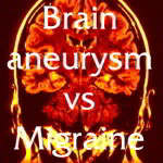 Migraine vs Brain Aneurysm – Which is it?
