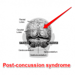 Why some people don't recognize post-concussion syndrome symptoms